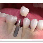 10 reasons why Dental Implants might be the right choice
