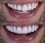 Upgrade your SMILE using Veneers!
